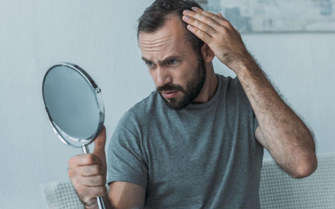 ¿Cómo puedes saber si sufres alopecia?