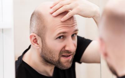 ¿Sabes ya qué tipo de alopecia tienes?